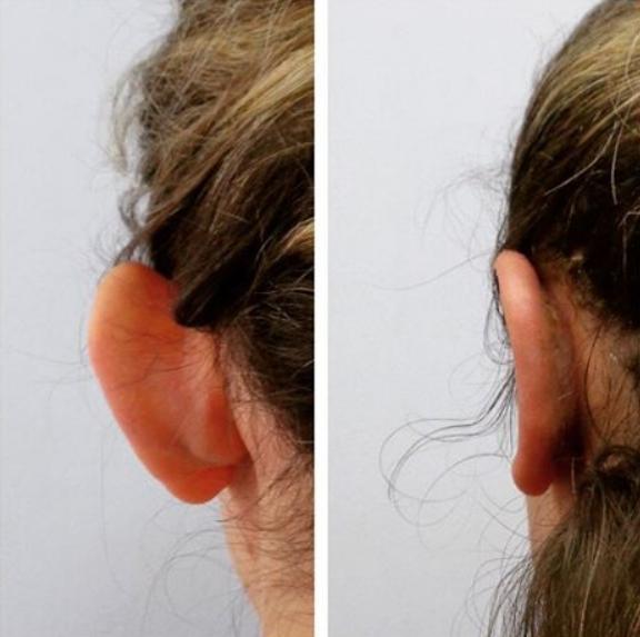 Работа доктора Косинца. До и после. Фото из соц. сетей