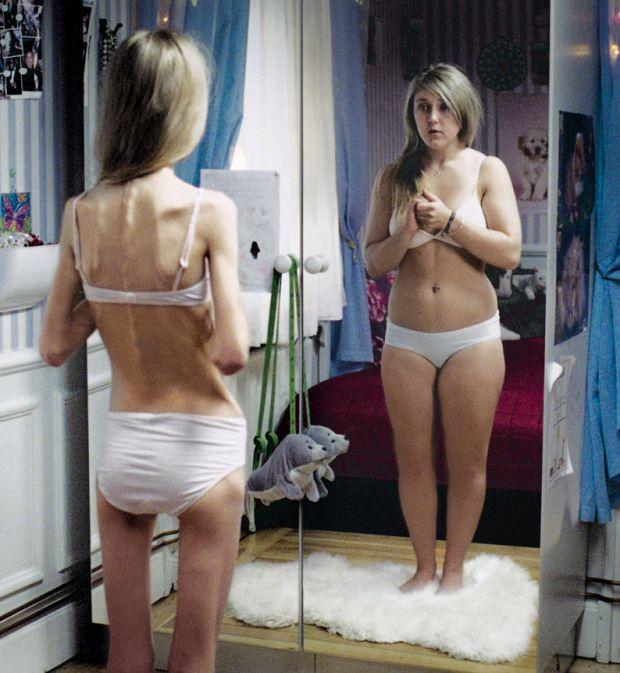 Страх приобрести лишний вес может стать фобией. Фото o-krohe.ru